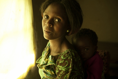 Photo of a Malawi woman and her baby.