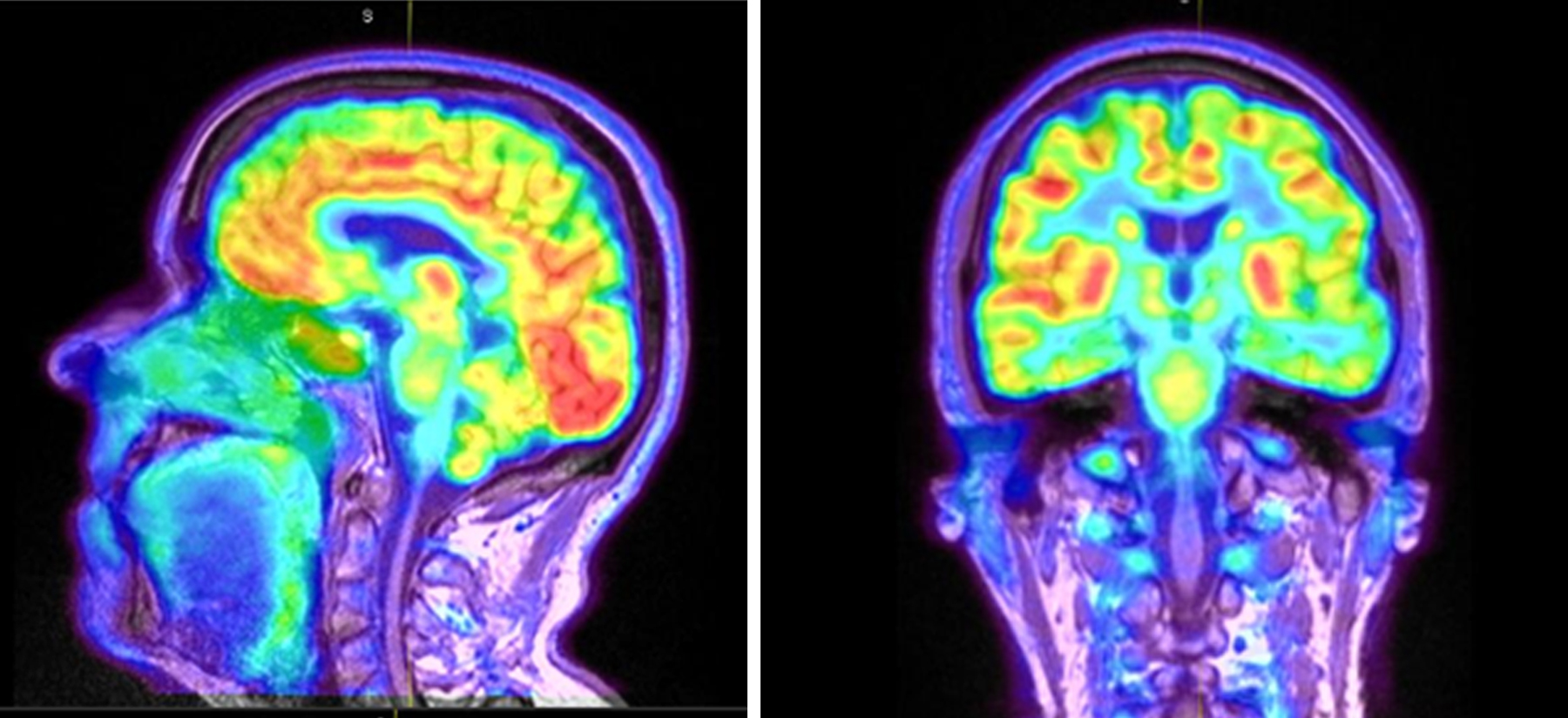 PET scan of a brain. Various regions of the brain are different colors to show activation.
