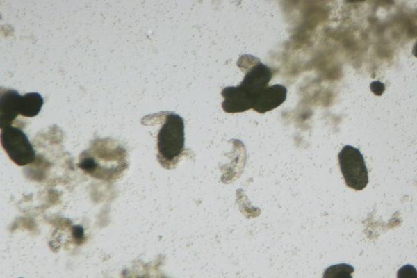 tardigrades under a compound light microscope