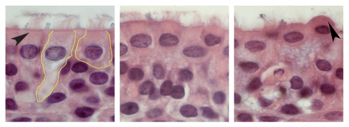 Courtesy of UNC Health Care Over the course of four days, the cells in the left image transform into a ball shape (right) before they shed from the lining of the airway to cause obstruction. This is a key reason why RSV leads to bronchiolitis.