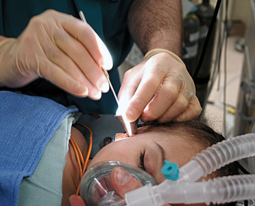 Image of a child getting ear tube replacement surgery.