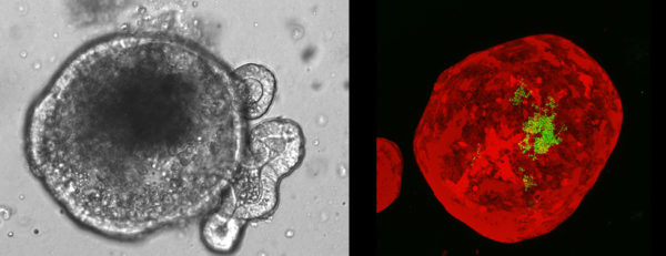 Left: A microscopic view of a mini-gut. Right: A mini-gut (red) is a spherical structure with a hollow center. This one had bacteria (green) inserted into it.