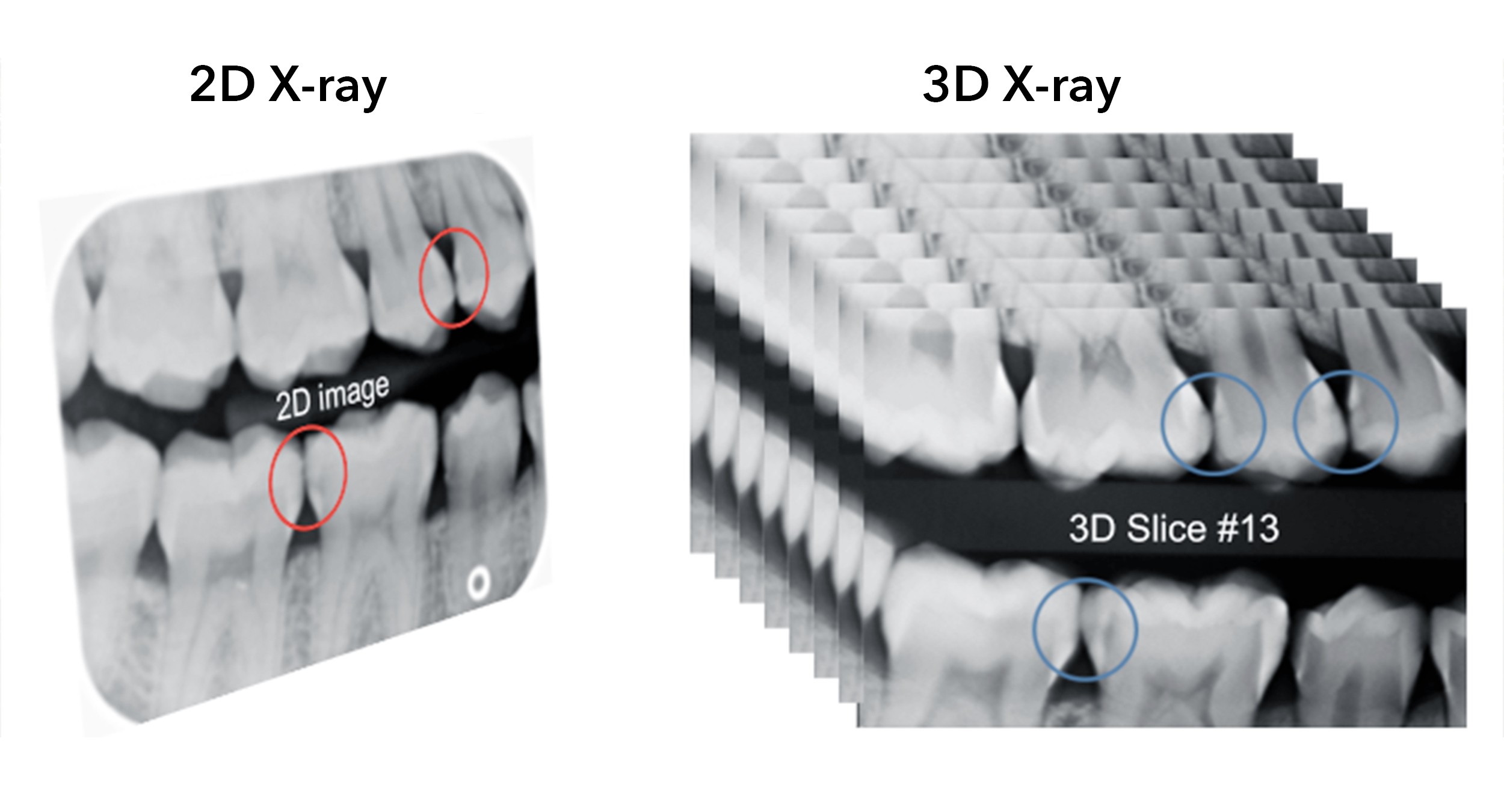 2D vs 3D X-ray images of teeth